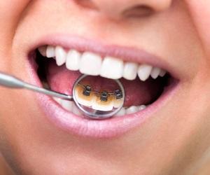 Брекет системы для ровных красивых зубов!