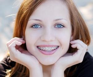 Металлические брекеты для детей и взролых