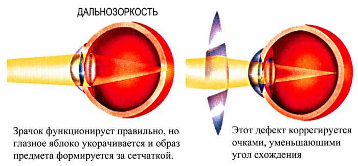 Витамины для глаз для улучшения зрения список для детей при близорукости