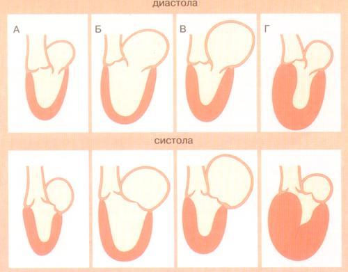 Дилатационная и ишемическая кардиомиопатия: вопросы ...