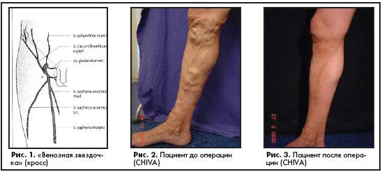 Облитерация вен ног