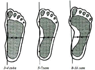 Как сделать снимок стоп на плоскостопие